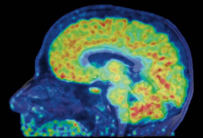 Radiotracer for High Precision Detection of Alzheimers Disease