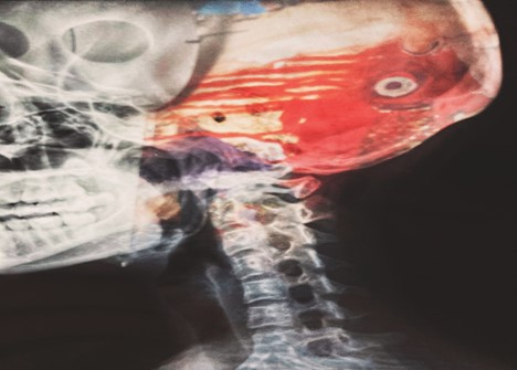 The Role of Teleradiology in Emergency Radiology Provision